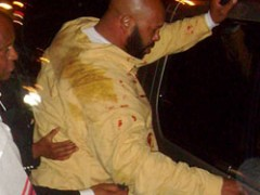 Suge Knight Knocked Unconscious Outside L.A. Nightclub