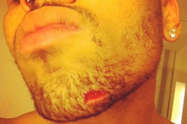 Chris Brown after brawl with Drake